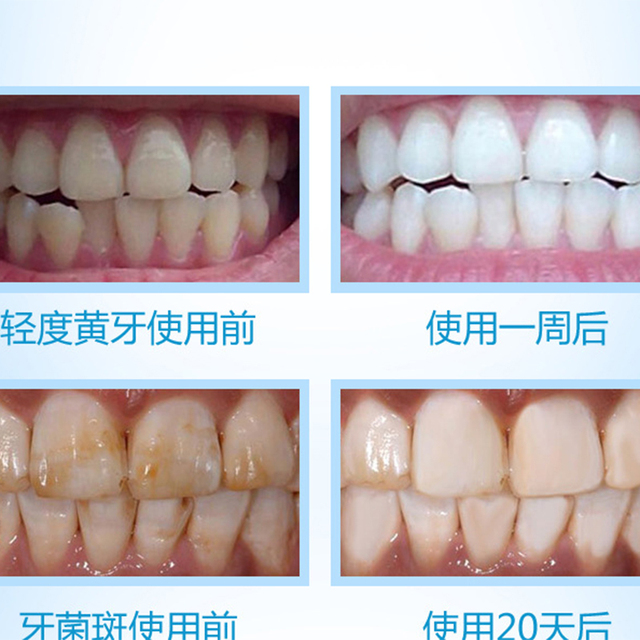 Electric Dental Teeth Whitening Kit