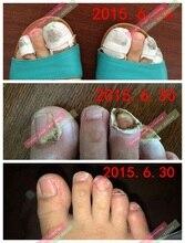 Varisi de hongos en las uñas del dedo del pie tratamiento especial Chino tradicional medicinel para dedo del pie uña hongo hongos esencia loción cuidado de las uñas
