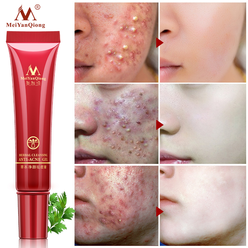 Meiyanqiong Face Cream Herbal Cleansing Face Anti Acne Treatment