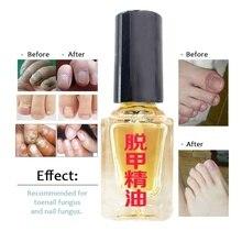 Действительно работает Лечение ногтей Удаление онихомикоза Paronychia анти-масло грибкового ногтя инфекция ног Лечение грибка ногтей масло