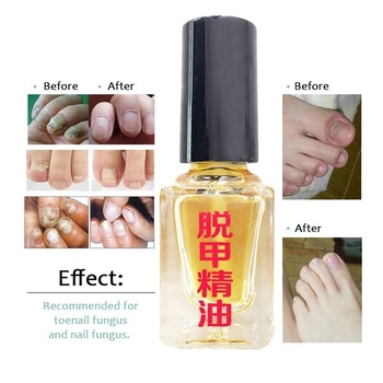 Really work Nail Treatment Removal of onychomycosis Paronychia Anti oil Fungal Nail Infection Toe Nail Fungus Treatment oil 1