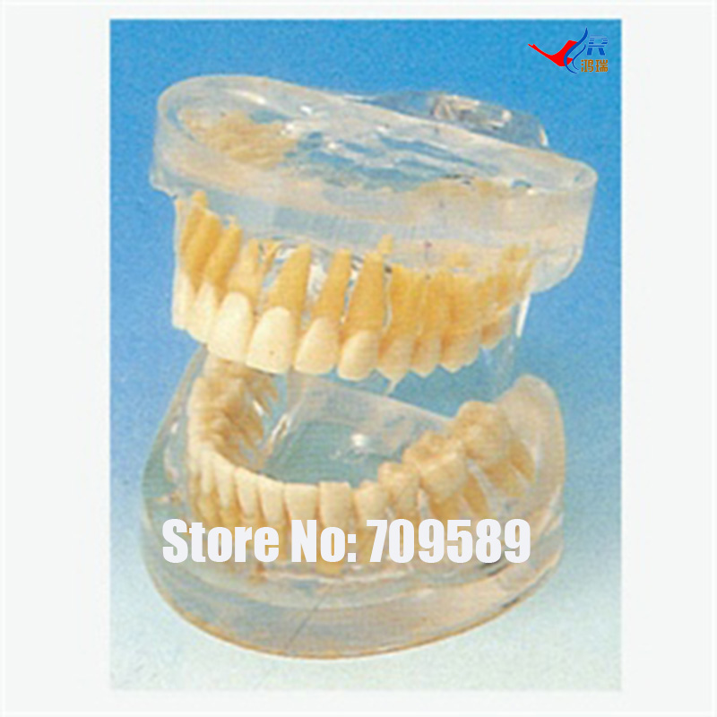 Transparent Adult Teeth Model, Dental Care Model soarday children primary teeth alternating transparent model dental root clearly displayed dentist patient communication