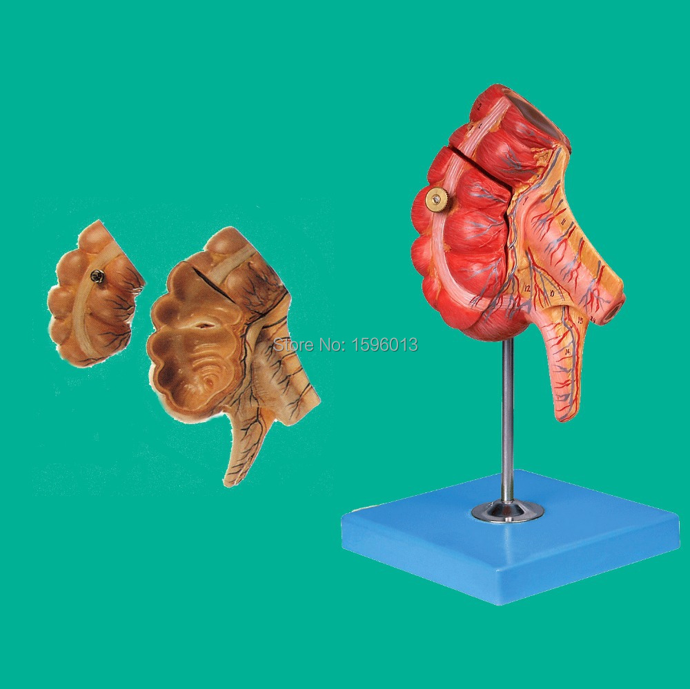 Appendix and Caecum Model, caecum and appendix model iso anatomical model of appendix and caecum human appendix