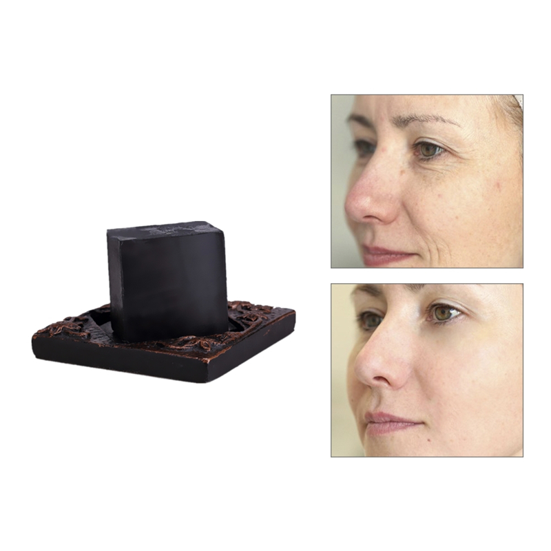 Natural Acne Treament Scar Repair Remove Dead Skin Goose Bumps Pimples Foliculitis Whole Body Whitening Bamboo Charcoal Soap