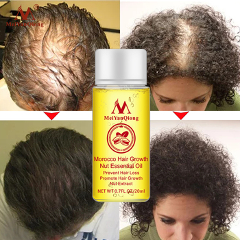Fast Powerful Hair Growth With Essence Oil - Hair Loss Products - Essential Oil Liquid Treatment Preventing Hair Loss - Hair Care Products 1