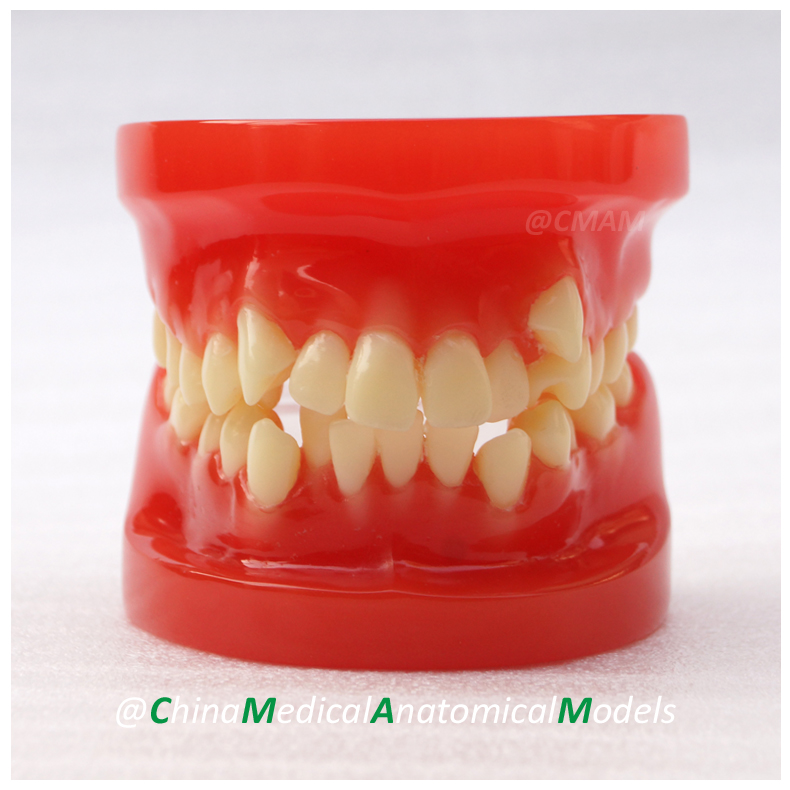 13030 DH204 Dentist Training Oral Dental Orthodontic Model, China Medical Anatomical Model dh202 2 dentist education oral dental ortho metal and ceramic model china medical anatomical model