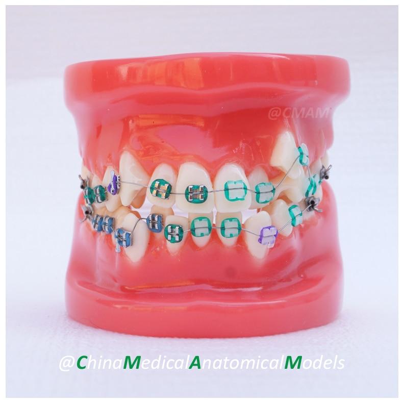 13019 DH201-1 Orthodontic Model, Dentist Gift Oral Dental Ortho Metal Model, China Medical Anatomical Model human anatomical male genital urinary pelvic system dissect medical organ model school hospital