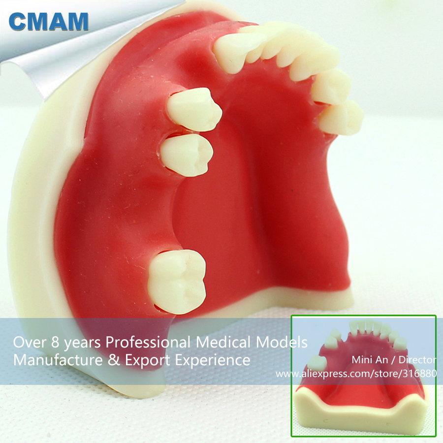 CMAM-IMPLANT04 Implant Jaw Model,  Medical Science Educational Teaching Anatomical Models cmam torso04 medical education tool model torso dual sex 29 parts medical science educational teaching anatomical models