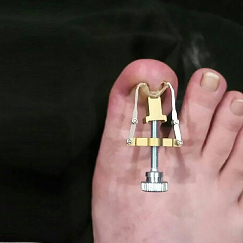 Feet Pies Foot Care Tools 6pcs/box Ingrown Toe Nail Pedicure ...