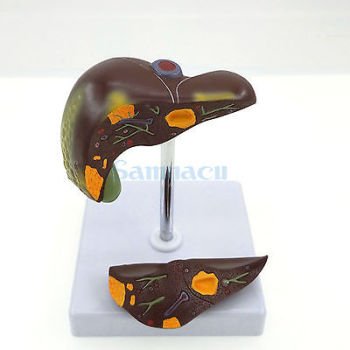 Diseased Liver Anatomica Medical Model Stone Specimens Fatty Liver Teaching Aids image