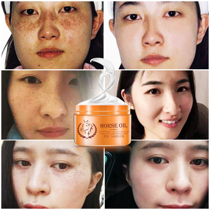 LAIKOU Face Moisturizers, Moisturizing Cream For Oily Skin Anti-Freckle Cream Strong Whitening Horse Oil Facial Cream Dark Spot цена