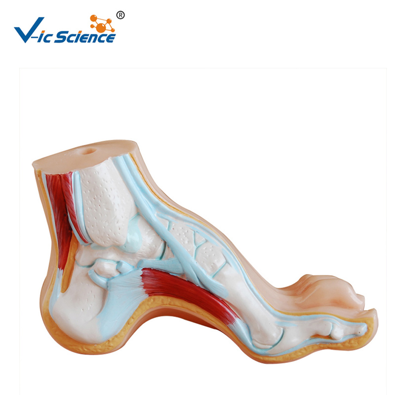 Hospital Study Arched Foot Foot Anatomy ModelHospital Study Arched Foot Foot Anatomy Model