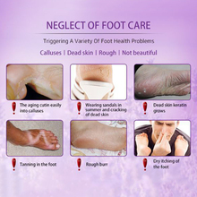 2 Pairs Lavender Foot Peel Mask Exfoliant Soft Feet Exfoliating Booties for Peeling Off Calluses Dead Skin SSwell