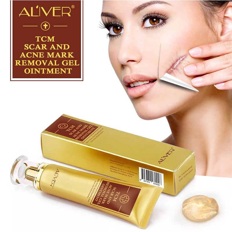ALIVER Akne Narbe Entfernung Creme Haut Reparatur salbe Akne Flecken Akne Behandlung Mitesser Bleaching Gel Stretch Marks 30ml