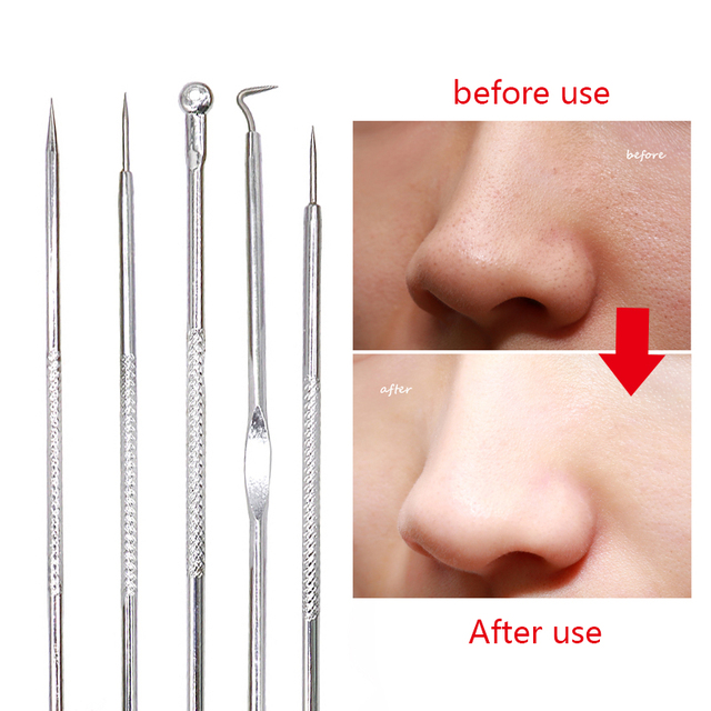 Acne Nose Blackhead Remover White Head Black Head Tool Pimple Comedone Extractor Skin Care Acne Removal Needle Stainless Steel 2