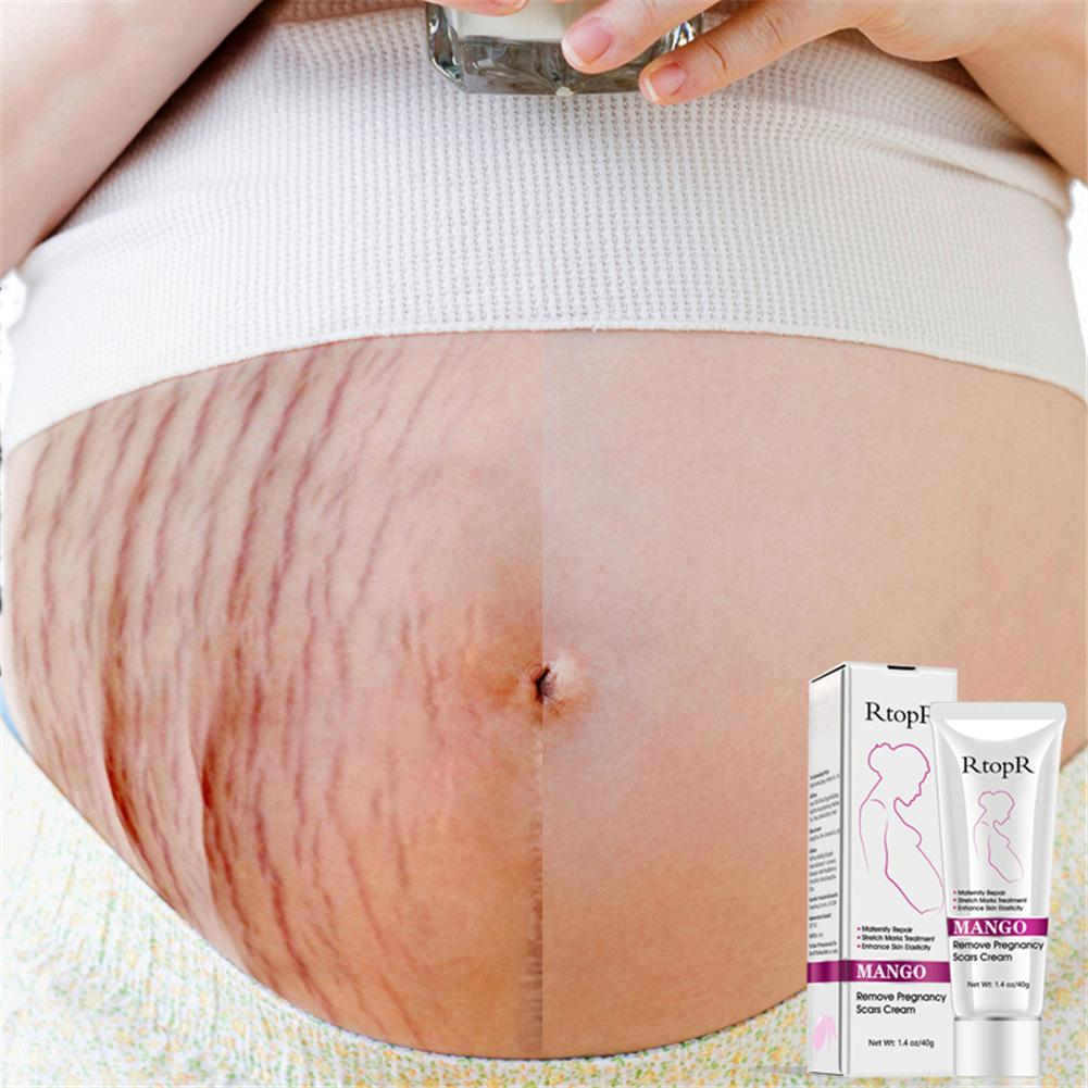 Remove Pregnancy Scars Acne Cream Stretch Marks Treatment Maternity Repair Anti-Aging Anti Winkles Firming Body Creams