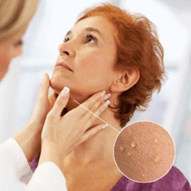 Dropshipping 6ml Skin Tag Remover 12 hours Tu kill Medical Remover Foot Corn Skin Tag Mole & Genital Wart Skin Tag Remover