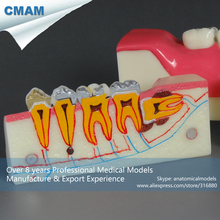 CMAM-TOOTH18 Caries Condition Molar Cross Section Study Model