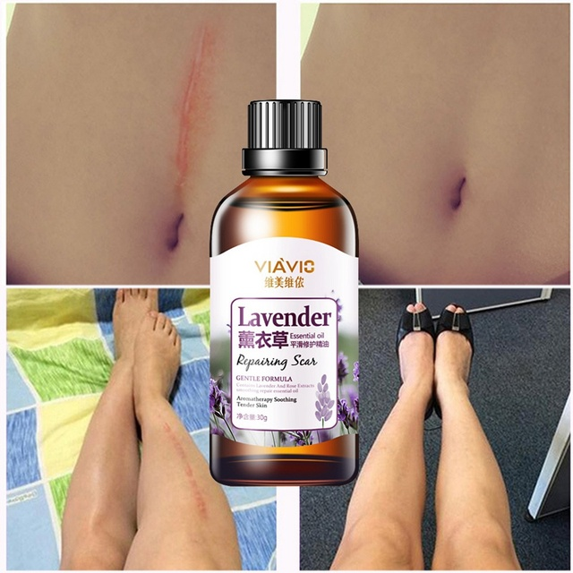Essential Oil for Scars and Stretch Marks