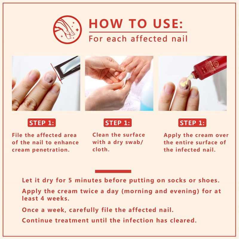 爪真菌治療エッセンス爪と足美白つま先爪の真菌除去美白 Onychomyco 足ケアネイルジェルツール 15 グラム