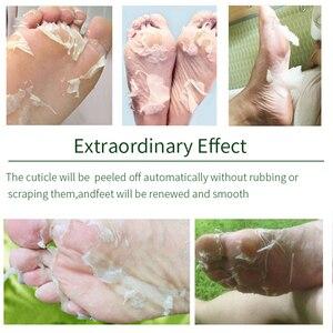 Image 4 - Efero mascarilla exfoliante de Aloe para pies, mascarilla para piernas, calcetines exfoliantes para pedicura, antigrieta de talón, elimina la piel del pie, 2 uds = 1 par