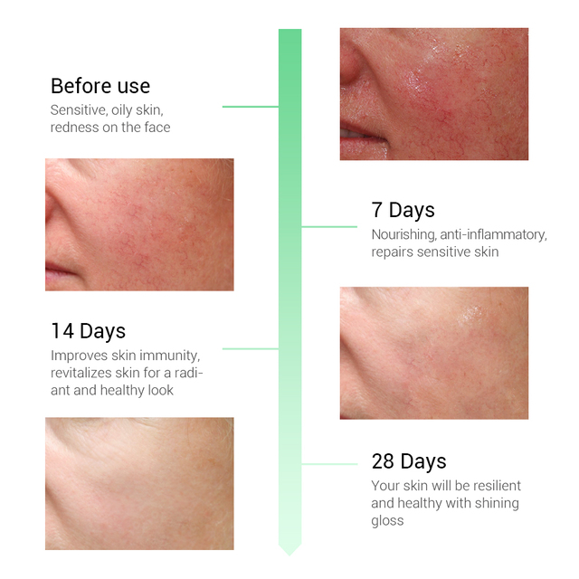 BREYLEE Repairing Serum Sensitive Skin Remove Fade Redness Treatment Soothing Whitening Face Skin Care Acne Scar