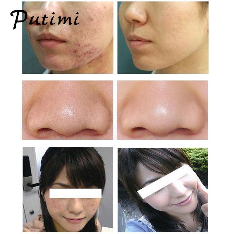 Putimi 4Pcs / Set Rose Gold spuogai Blackhead šalinimo adatos Pimple - Įrankių odos priežiūros - Nuotrauka 4
