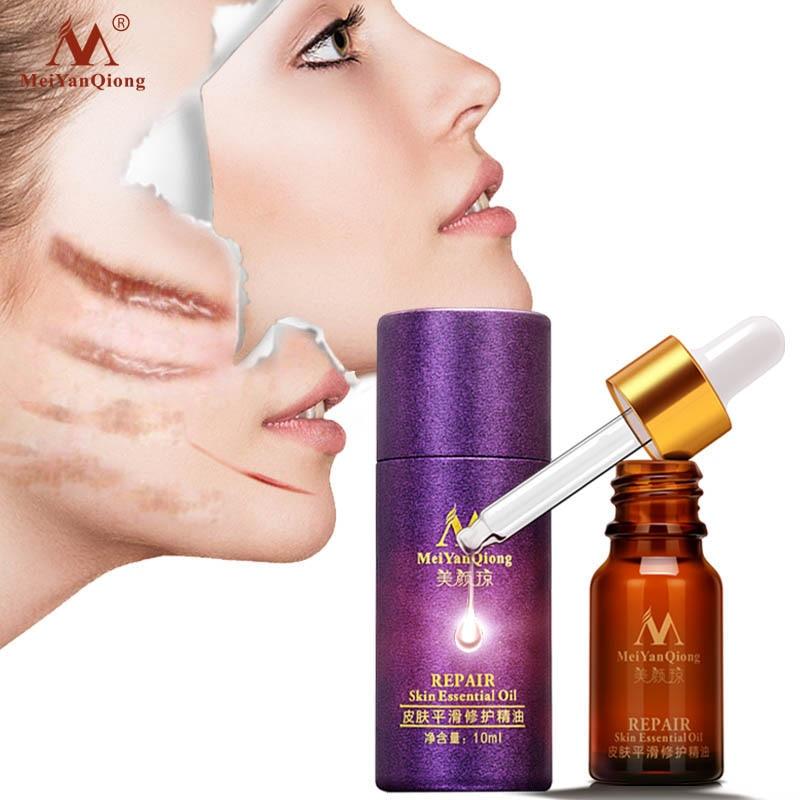 купить Scar Repair Skin Essential Oil Lavender Essence Skin Care Natural Pure Remove Ance Burn Strentch Marks Scar Removal Treatment недорого