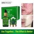 BREYLEE набор для лечения акне, сыворотка для раствора акне, пятна, пятен, искусственная кожа, отбеливающий уход за кожей лица
