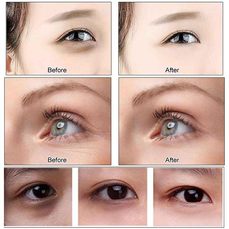 EFERO 60pcs Anti Wrinkle Collagen Eye Skin care Mask Gel Eyes Patches Pads Anti Eye Bags