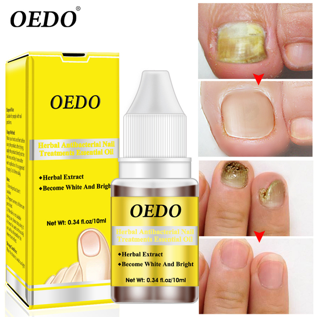 Herbal Antibacterial Nail Treatments Essential Oil Herbal Extract Nail Fungus Art Repair Tools Foot Nail Care Improve Infection
