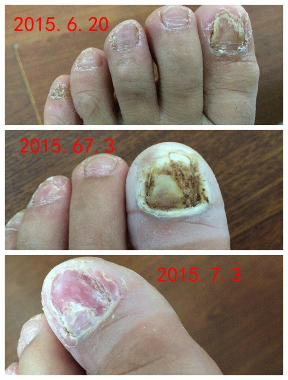 Toe Nail Fungus Treatment Of Chinese Medicine Herbs Anti Fungal ...