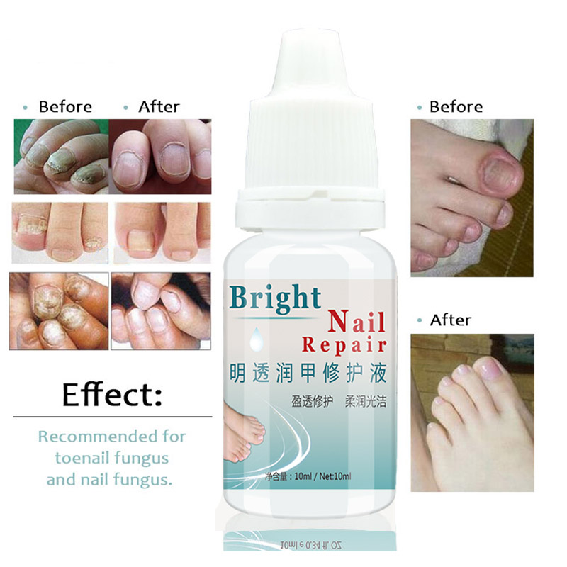 1PC Fungal Nail Treatment Feet Hand Nail Care Essence Nail and Foot Whitening Toe Nails Fungus Removal Useful Drop Shipping