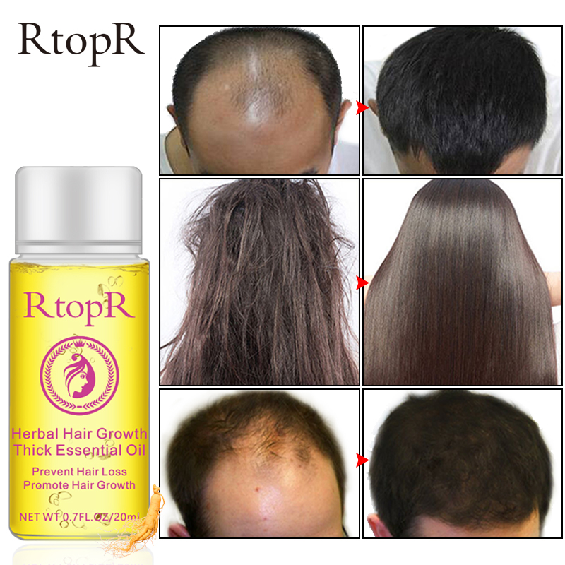 RtopR Fast Powerful Hair Growth Essence Products Essential