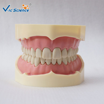 Dental BF Type Teeth Study Model