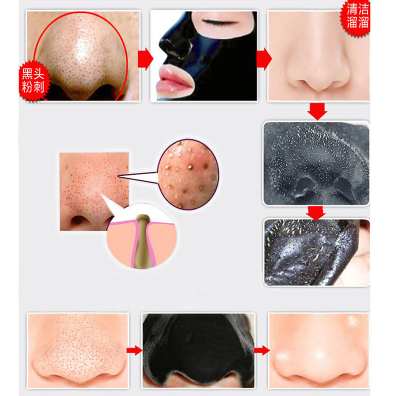 10Pcs/Lot Beauty Nose Mask Herbal Blackhead Removal Black Mask Face Mask Black Head Pore Strip Peel Off Makeup Black Dots Mask