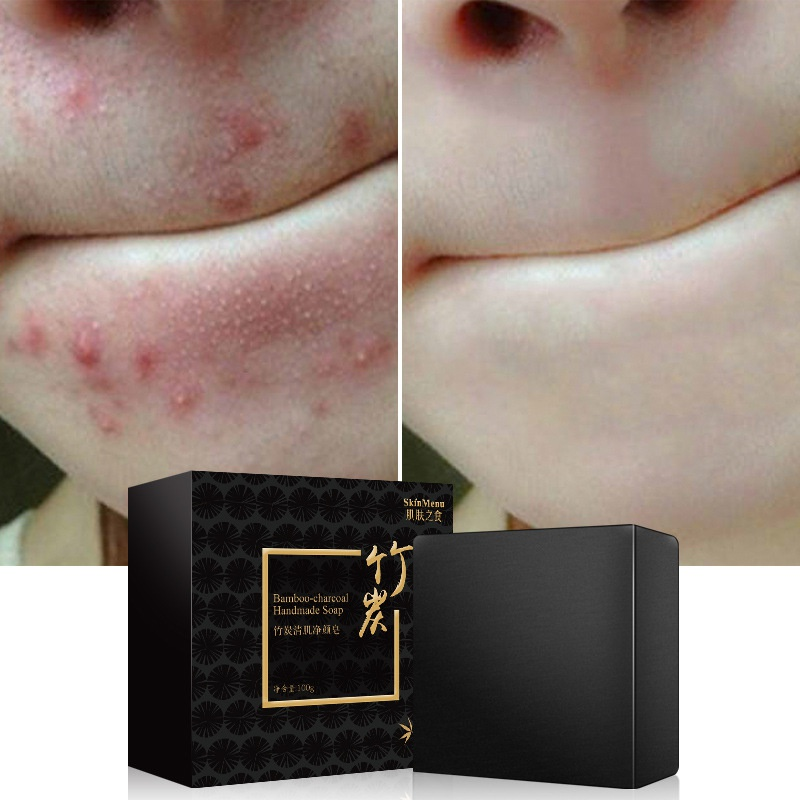 Bamboo Charcoal Sea Salt Acne Treatments Handmade Soap Oil Control Mites Bacteria Removing Face Body Skin Deep Cleansing