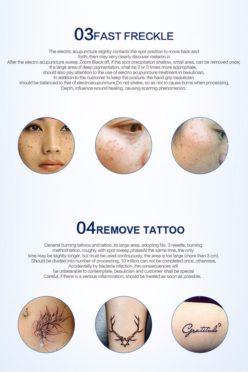 tattoo-removal-machine-12