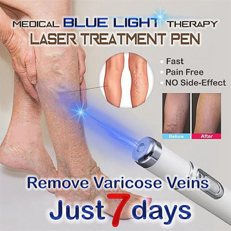 Free Shipping Blue Light Therapy Laser Treatment Pen Face Massager Acne Scar Wrinkle Removal Beauty(China)