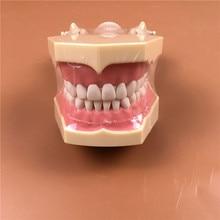 1pc SF Type Study Model teeth models Teeth Jaw Models for dental school teaching dentist dental teeth Models high quality dental oral 28 pcs adult permanent teeth models full month dental gift communication tooth models odontologia