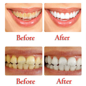 Image 4 - Stain Removal Whitening Toothpaste Fight Bleeding Gums Toothpaste Strong Cleaning Power Stain Remover Whitening Toothpaste