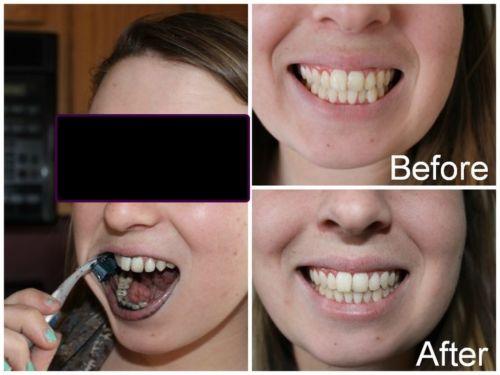 Tag Como Clarear Os Dentes Com Carvao Ativado