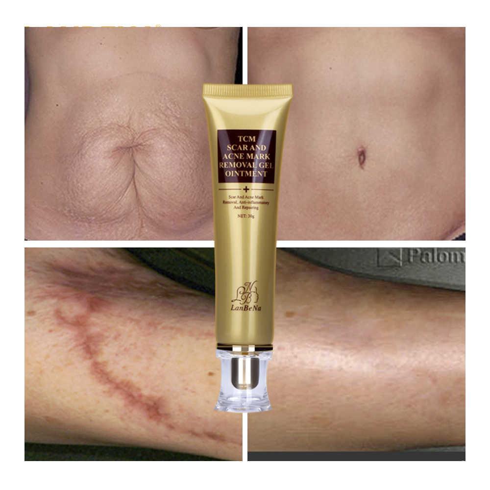 3 購入 1 取得ギフト LANBENA にきび瘢痕除去クリーム皮膚の修復顔クリーム 3 個 + EGF 血清治療にきび美白スキンケア