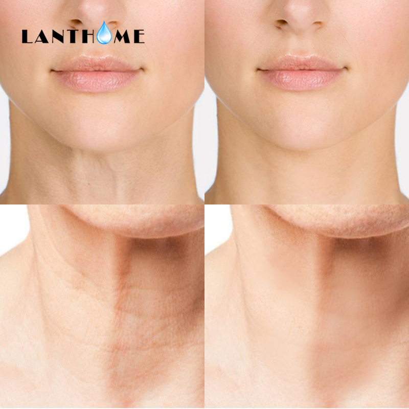 US $2 49 30% OFF|Reusable Anti Wrinkle Silicone Care Neck Pad Anti Aging  Neck Firming Patches Wrinkle Treatment Prevention Remover Face Wrinkle-in