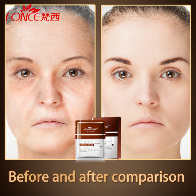[Normal delivery] face Mask Anti Wrinkle Anti Aging Six peptides Plant mascarilla facial Treatment Mask 10 pieces Skin Care 1