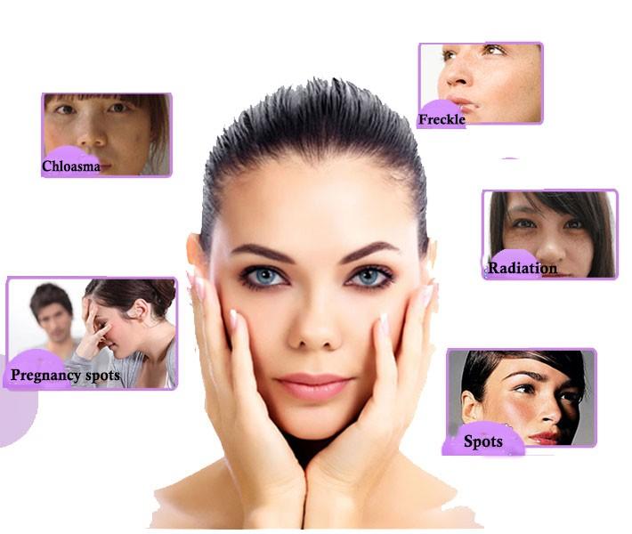 Whiten Skin Remove Freckle Anti-Inflammatory Skin Care Compound Essential Oil 10ml 11
