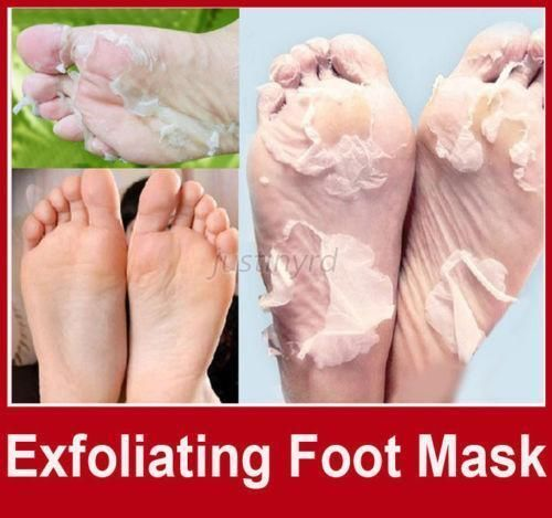 hard feet treatment