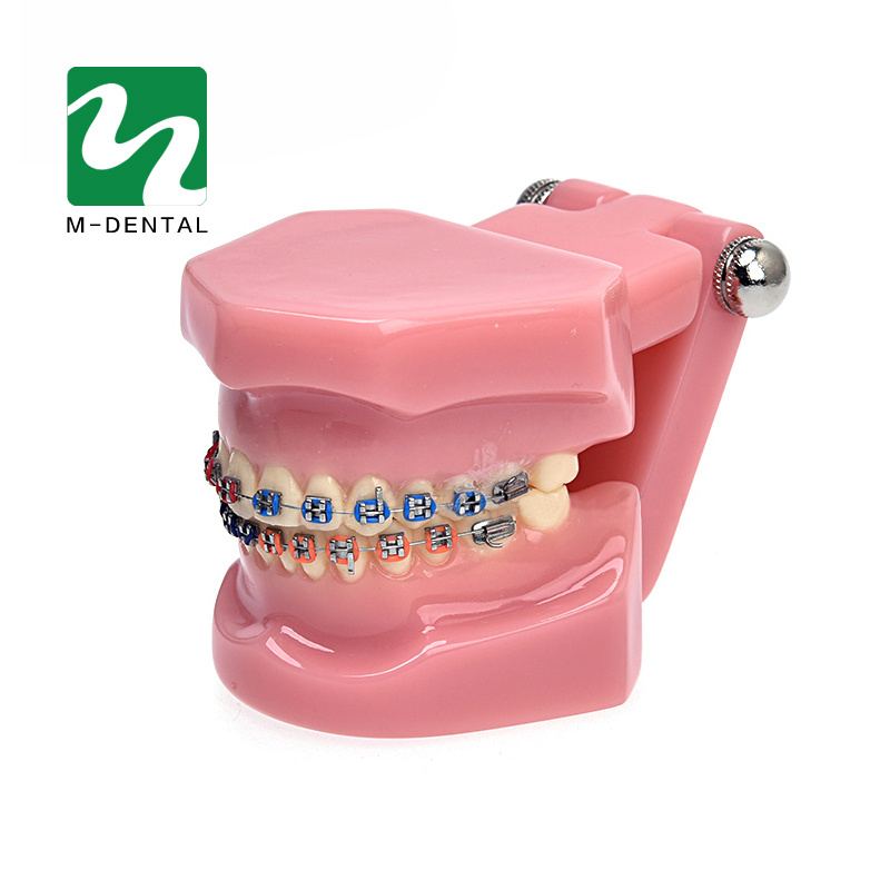1PC Dental Orthodontic Study Model Teeth Orthodontic Model With Metal Brackets For Teaching High Quality orthodontic teeth model with metal bracket education teeth model m3001 orthodontic practice model pink transparent tooth model