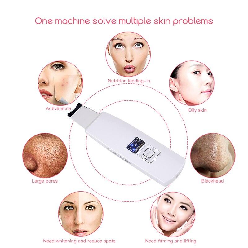 Multifunktions Ultraschall Ionen Pad Haut Wäscher Wiederaufladbare Ultraschall Gesicht Poren Reiniger Tiefe Reinigung Gesichts Peeling Massager48