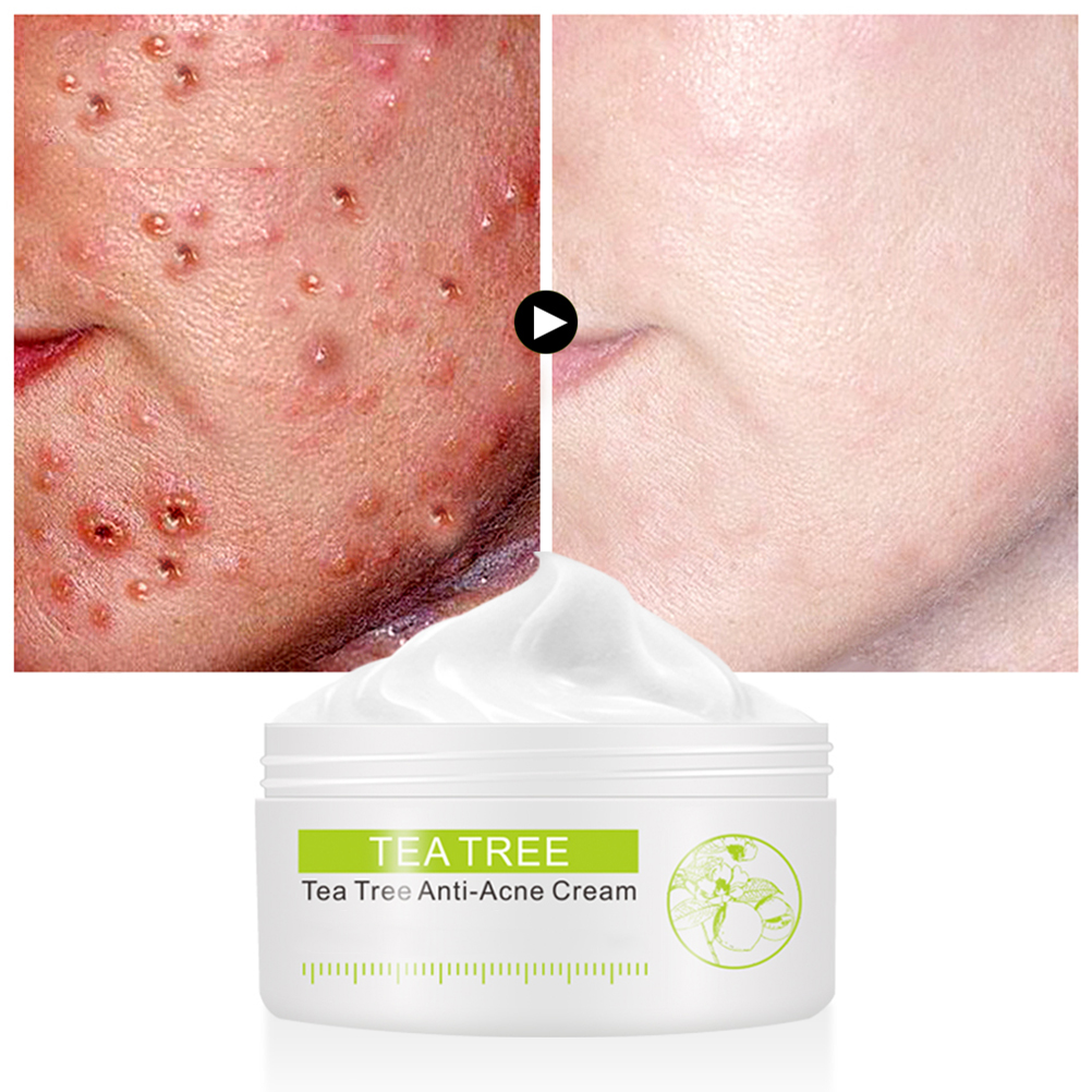 30G Tea Tree Acne Cream Anti-acne Contain Vitamin E Facial Oil Control Skin Care Cream Balance Oil Secretion Acne Cream(China)